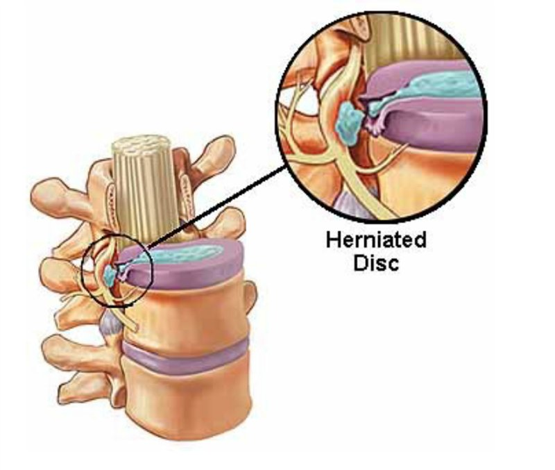 хирургическое лечение грыжи позвоночника